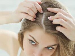 hair loss dandruff